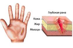 Глубокая резаная рана