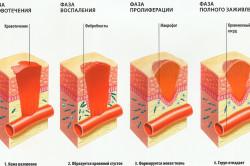 Этапы заживления раны