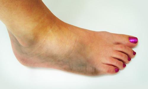 Опухоль на ноге после ушиба