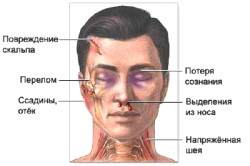 Основные признаки черепно-мозговой травмы