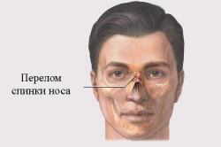Перелом спинки носа