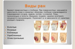 Разновидности ран