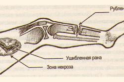 Рубленая и ушибленная раны