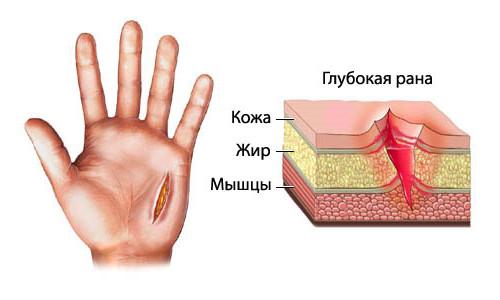 Схема глубокой рубленной раны