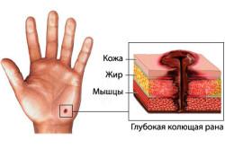 Схематическое изображение колотой раны