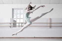 Занятия бальными танцами - причина перелома плюсневой кости стопы