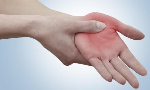 Проблема перелома пястной кости со смещением