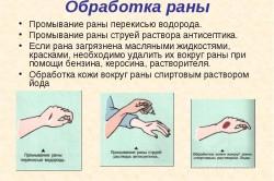 Обработка кожи вокруг раны спиртовым раствором йода