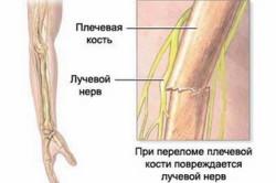 Схема перелома руки