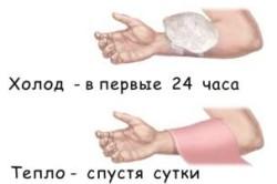 Помощь при ушибе руки