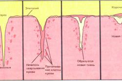 Процесс заживания пореза