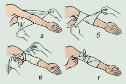 Этапы наложения повязки на руку