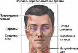 Признаки черепно-мозговой травмы
