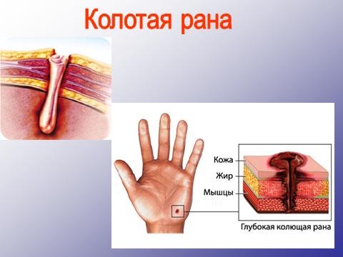 стадии заживления раны фото