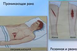 Некоторые виды ран