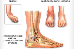Схема растяжения сухожилия на ноге