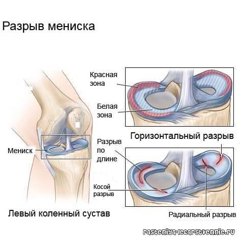 Закачка коленных суставов 164