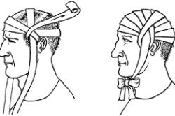 Наложение повязки при травме головы