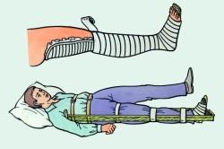 Иммобилизация нижней конечности проволочной шиной Крамера