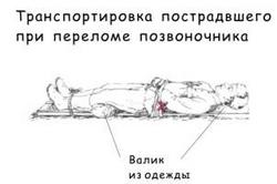 Транспортировка пострадавшего при переломе позвоночника