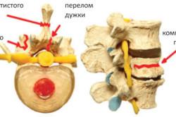 Виды переломов позвоночника