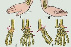 Механизм травмы и виды смещения при переломе лучевой кости в типичном месте