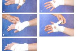 Наложение повязки при переломе пальца