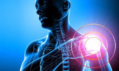 Проблема перелома плеча