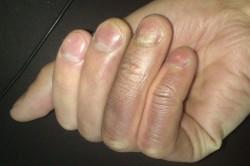Металлизация кожи на пальцах