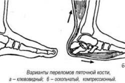 Схема перелома пяточной кости