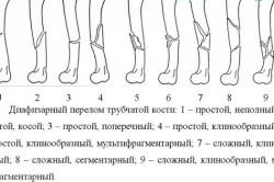 Виды переломов трубчатых костей