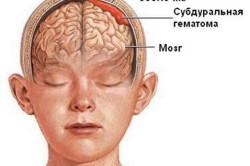 Схема ушиба головного мозга