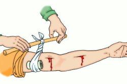 Наложение жгута при ранах