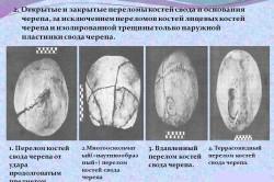 Открытые и закрытые переломы костей свода и основания черепа