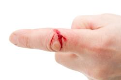 Кровотечение при переломе