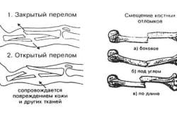 Разновидности переломов