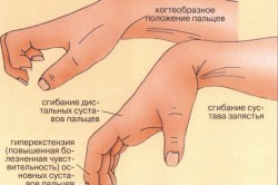 Диагностика вывиха кисти