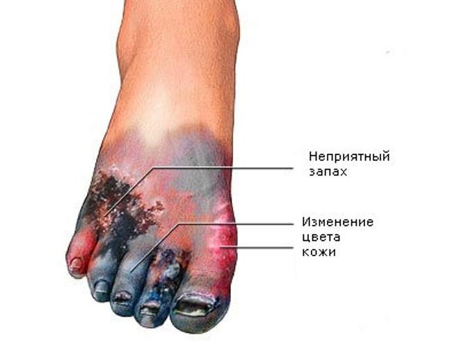 Как вылечить гнойную рану на ноге при сахарном диабете