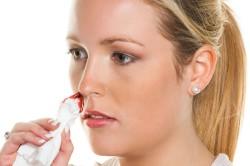 Остановка крови из носа