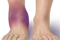 Распухание ноги при растяжении связок