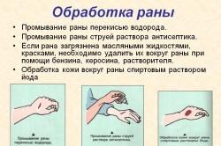 Правила обработки раны