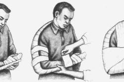 Иммобилизация при переломе плеча