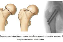 Схема перелома шейки бедра