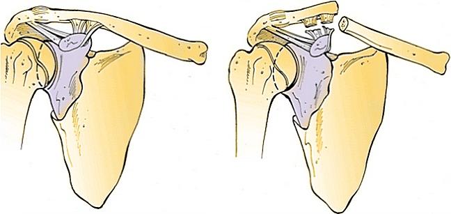 Причинами перелома ключицы