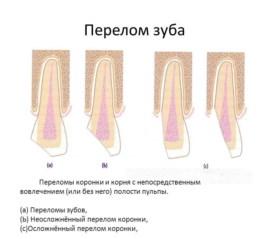 Как и зачем стоматологи ставят пломбы?