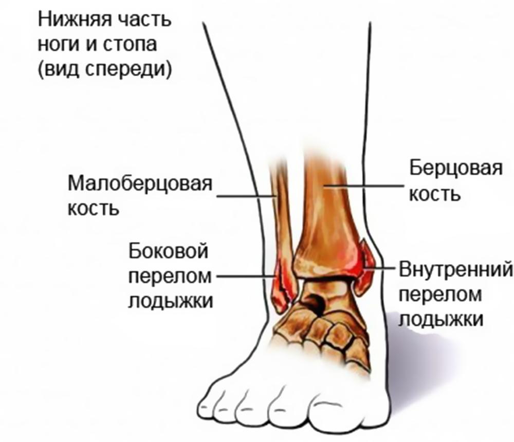Перелом лодыжки: виды, симптомы и лечение