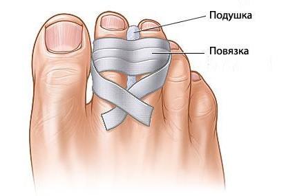 Ушиб пальца на ноге: симптомы, лечение и первая помощь