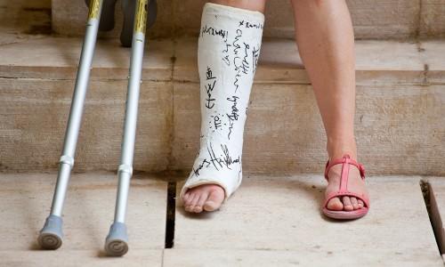 Проблема оскольчатого перелома