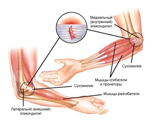 Ушиб локтевого сустава и его лечение