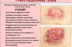 Грануляционная ткань